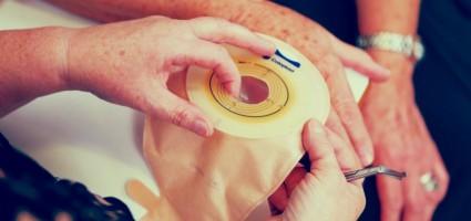 Засоби догляду за стомою